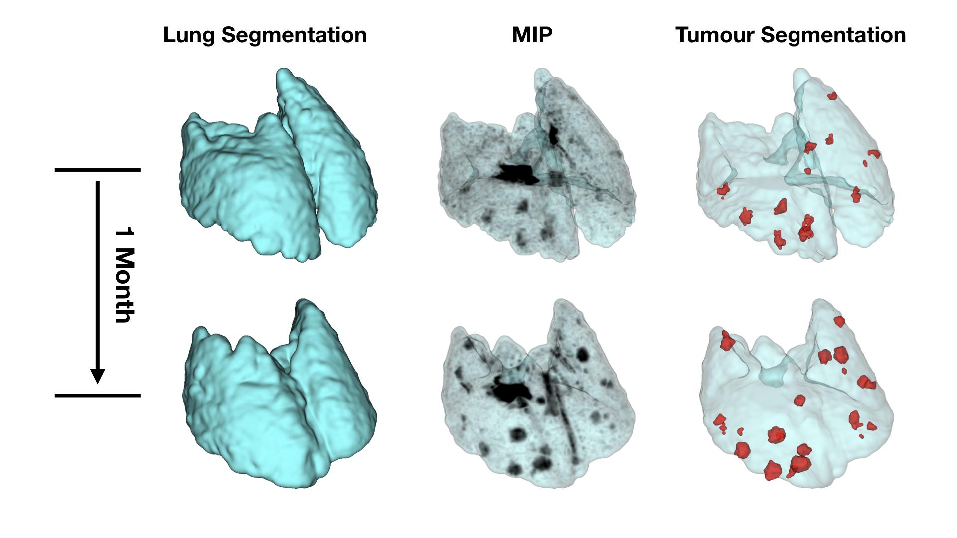 MRI_Lungs